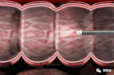 肠镜检查能救命!出现这22种情况必须做肠镜检查!