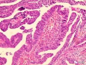 这两个病例告诉你:无症状也要做个肠镜!