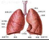 一半以上肺癌患者首发症状是咳嗽,别拖到晚期才去找医生